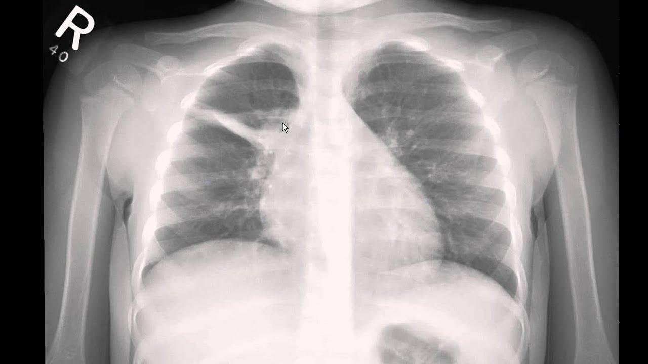 Pediatric chest xray interpretation youtube