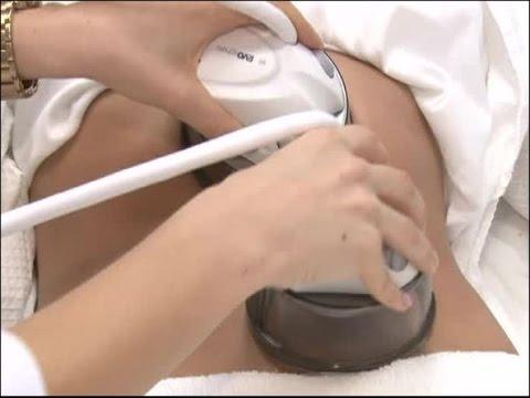 Вакуумный массаж банками на аппарате Starvac