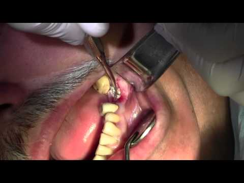 Extraction Tooth 18 Extraction 18 With Simple