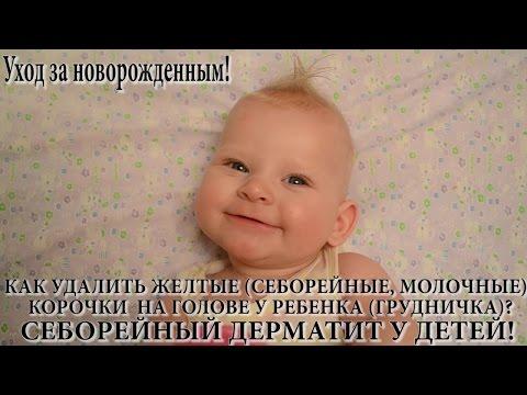 Как удалить желтые (молочные, себорейные) корочки на голове у ребенка? Себорейный дерматит у детей.
