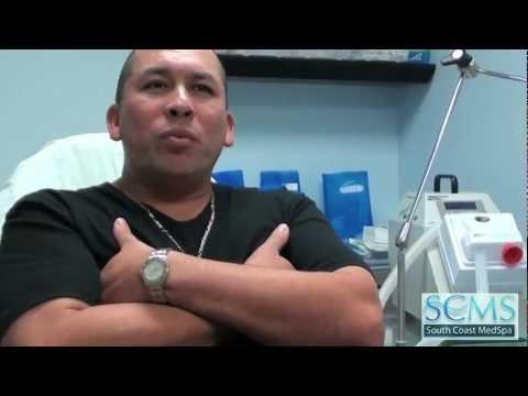Hispanic Laser Acne Scar Removal Testimonial