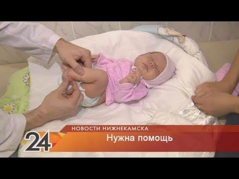 Русфонд: помощь нужна маленькой Амине, у которой двусторонняя косолапость
