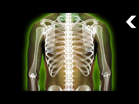 What Does Radiation Poisoning Do to Your Body?