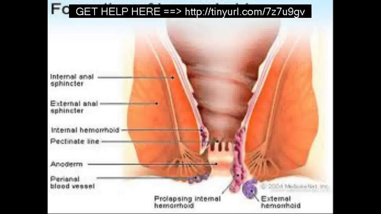 Natural Treatment For Painful Intercourse