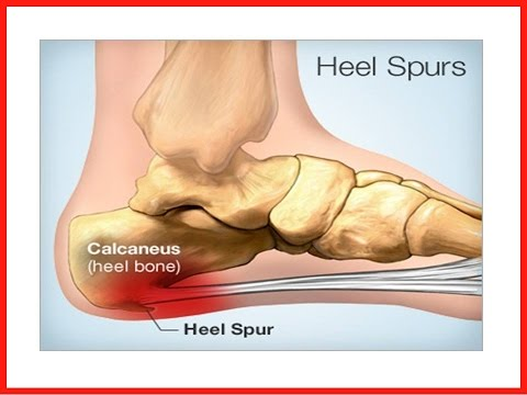 Pain in Heel of Foot | How to Get Rid of Foot Pain Caused by Heel Spurs or Pain in heel of foot