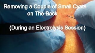 Removing a Couple of Small Cysts on The Back -During an Electrolysis Session-