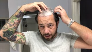 How To Cut Your Hair Where Your Template Goes Using A Hair Replacement Or Hair System