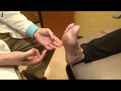 كيف تحمي نفسك من ضغط الأعصاب بين عظام القدم؟