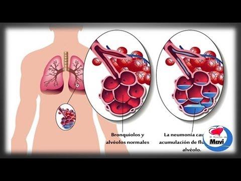 Remedios caseros y naturales para tratar la neumonia - Sintomas de la neumonia