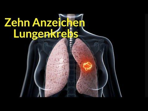 Zehn mögliche Anzeichen für Lungenkrebs - 365 Belle - Gesundheit für alle
