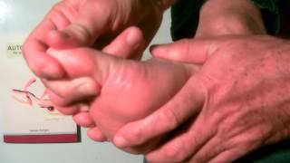 massage de pied hallux valgus (oignon)