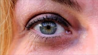 Göz Alerjisi Nedir, Nasıl Geçer, Korunulur, Kimlerde Olur? Geçmiyor mu?