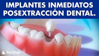 Implantes dentales inmediatos post extracciones dentales ©