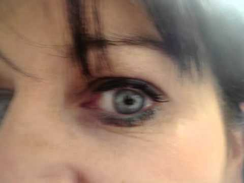 ActiveFX: Stages in skin  healing around eye area after laser. Patient 2