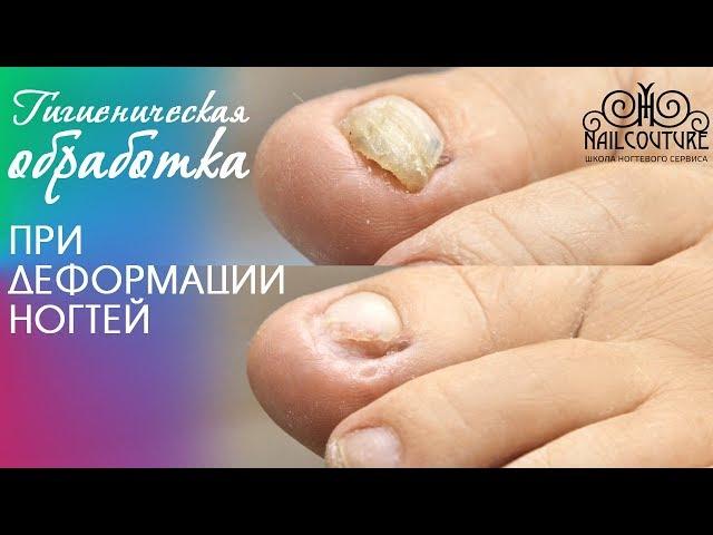 Гигиеническая обработка в педикюре при деформации ногтей