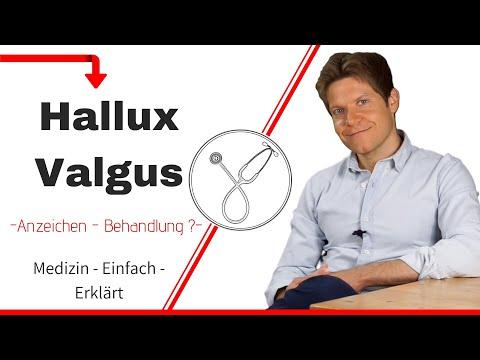 Was ist ein Hallux Valgus? Wie behandelt man diese Erkrankung?