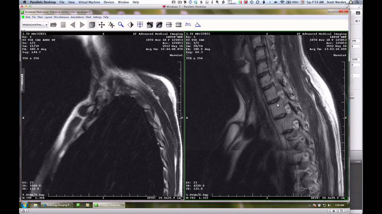 Thoracic Outlet Syndrome Mri - Viewing Gallery