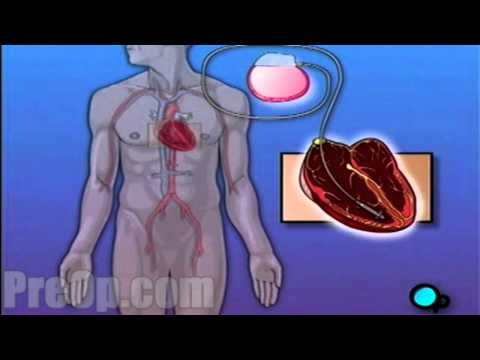Permanent Pacemaker Implant PreOp® Patient Education HD