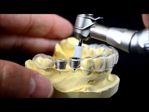 Dental implant surgical guide drilling protocol