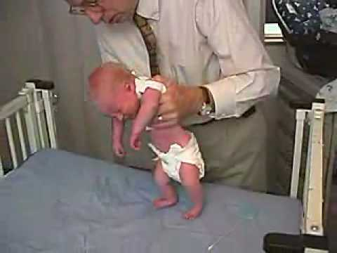 Primitive Reflexes - Stepping With the baby held in vertical suspension and