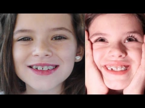 EMMA GETS BRACES!!   |  KittiesMama