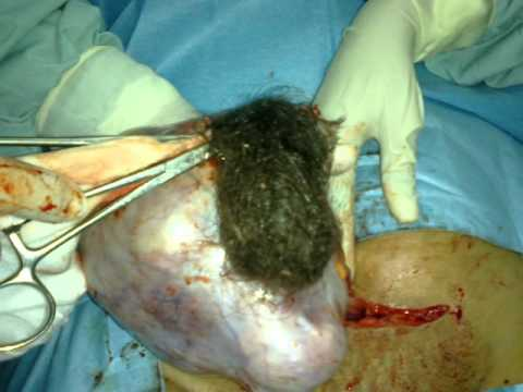 removal of huge drmoid cyst