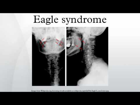 Eagle-syndrom