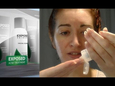 How To Use Exposed Skin Care (REQUESTED!) My At Home Acne Treatment System!