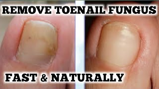 HOW TO TREAT TOENAIL FUNGUS FAST AND NATURALLY – You Need To Be Doing This Super Important Tip