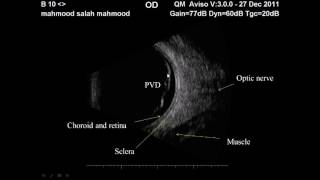 Ophthalmic ultrasonography : 1.Normal anatomy
