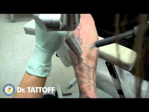 Tattoo Removal - Half Sleeve Laser Tattoo Removal at Dr TATTOFF Tattoo Removal Clinic
