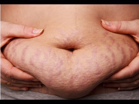 How to Get Rid of Stretch Marks on Arms How to Get Rid of Stretch