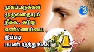 முகப்பருக்கள் முழுவதையும் நீக்க கடுகு எண்ணெய்யை இப்படி பயன்படுத்துங்க..! – Tamil TV