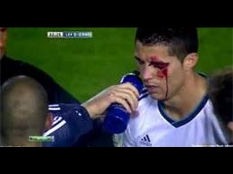 Cristiano Ronaldo WORST INJURY EVER against LEVANTE 11.11.12 [HD]