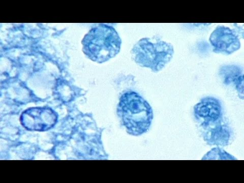 Deadly brain-eating amoeba warning