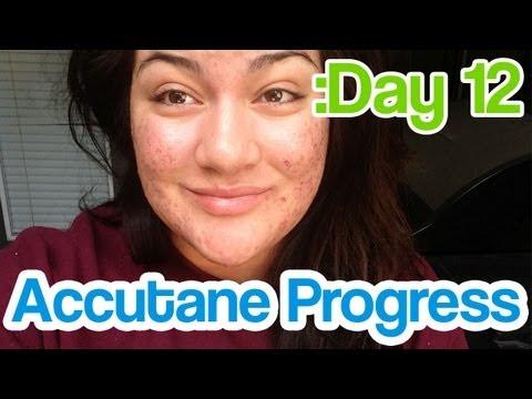 Day 12 Accutane SEVERE Acne Update