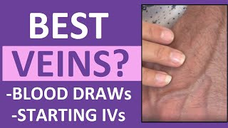 Best Veins for IV Insertion, Drawing Blood (Venipuncture Tips) in Nursing, Phlebotomy