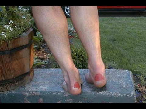how to get rid of blisters without popping them