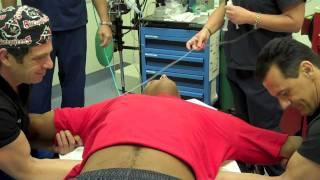 Manipulation Under Anesthesia (MUA) Procedure - Part 1