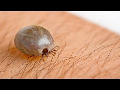10 Incredibly Dangerous Parasites