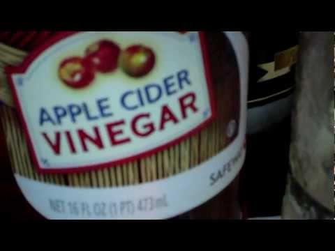 Apple Cider Vinegar-Weight Loss/Arthritis/Wart Removal and more!