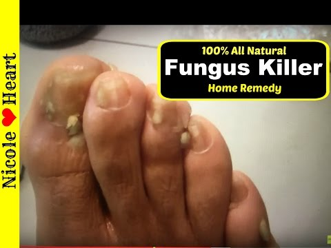 Home Remedy for Toenail Fungus & Athlete s Foot | Natural Fungus Killer by Nicoles Heart