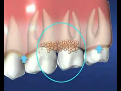 Oral Health   Dental Plaque (VIDEO)