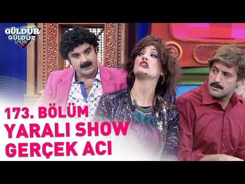 Güldür Güldür Show 173. Bölüm | Yaralı Show - Gerçek Acı