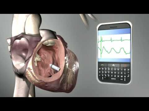 Medtronic leadless pacemaker with wireless connectivity to smart phones