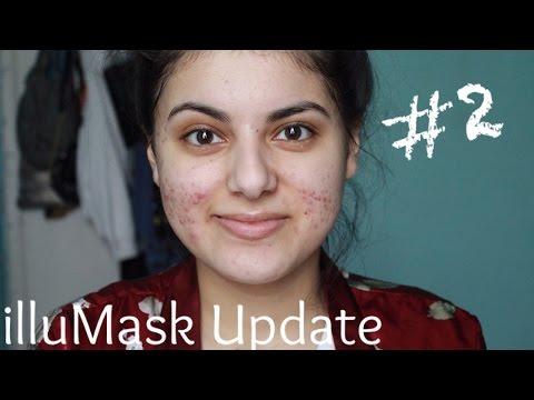 Anti-Acne illuMask Update #2   Amy Ali