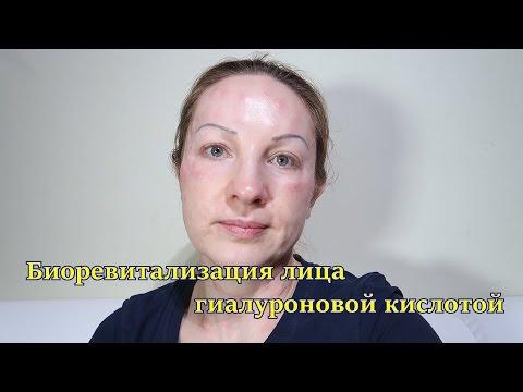 Биоревитализация лица гиалуроновой кислотой.