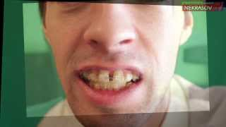 шоу NEKRASOV TV брекеты 1day with BRACES inspire / 3 month later with braces inspire!