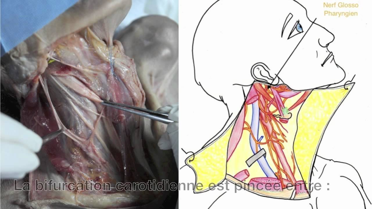 Le tableau clinique de la douleur dans le cou