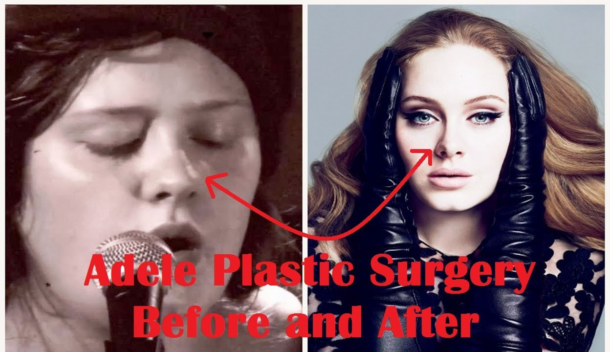 Adele Plastic Surgery Before
